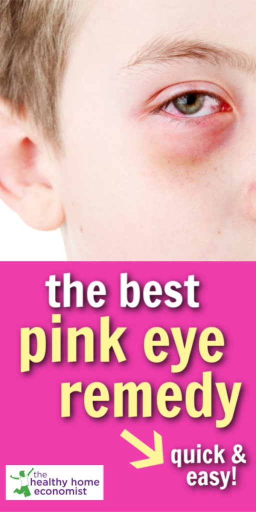 pinkeye home remedy