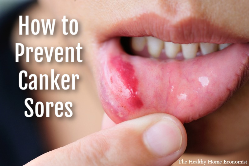 woman with canker sore on lower lip