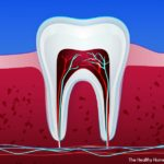 root canal healing