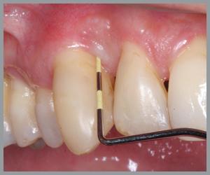 periodontal problems