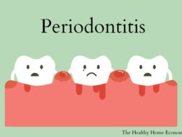 periodontal problems