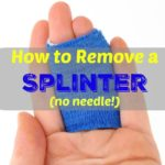 How to Remove a Stubborn Splinter with no Pain or Needles