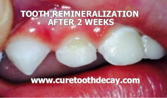 week 2 cavity healing