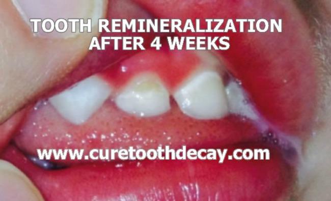 week 4 cavity healing