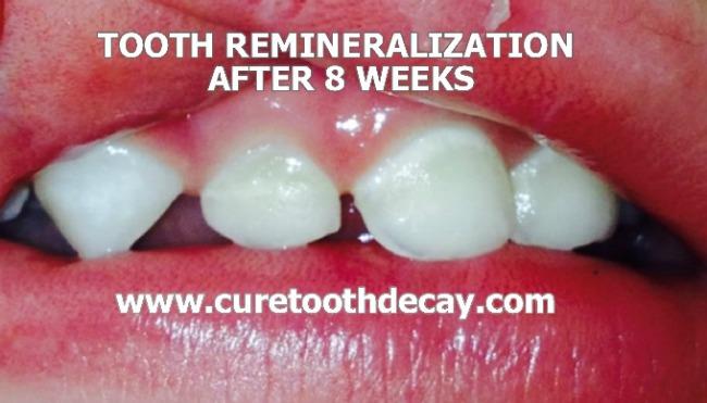 week 8 cavity healing
