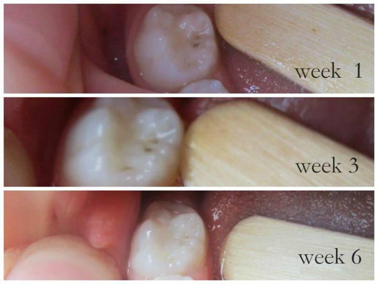 cavities healing