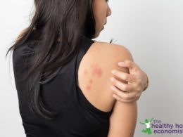 Eczema Treatment: Avoiding the Drug-Based Domino Effect