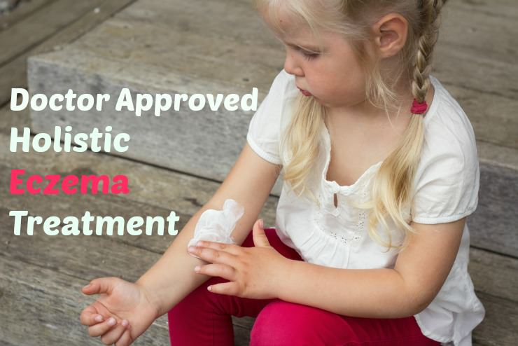 eczema treatment remedies