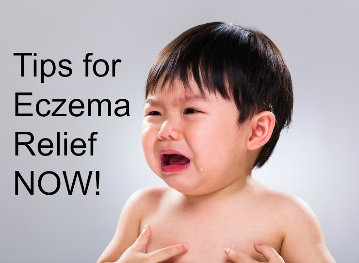 Tips for Eczema Relief NOW (while healing from within)