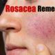 rosacea remedies
