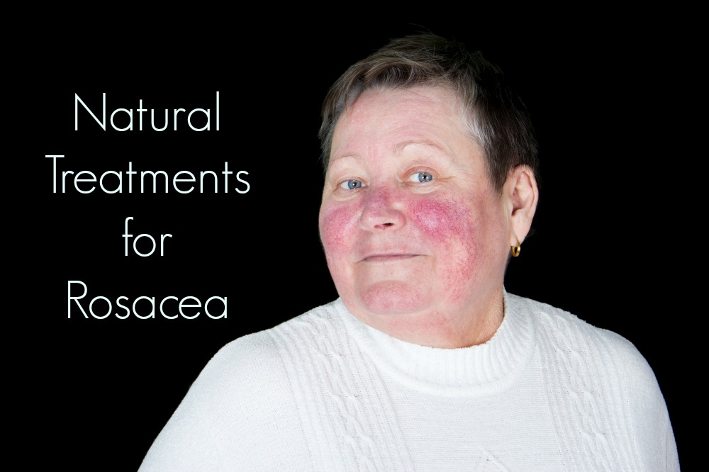 natural treatment for rosacea