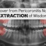 pericoronitis