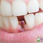 dental implants, tooth implant