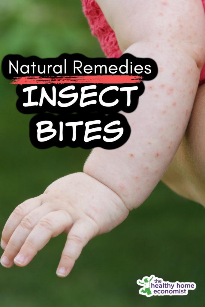baby with flea bites on her left arm